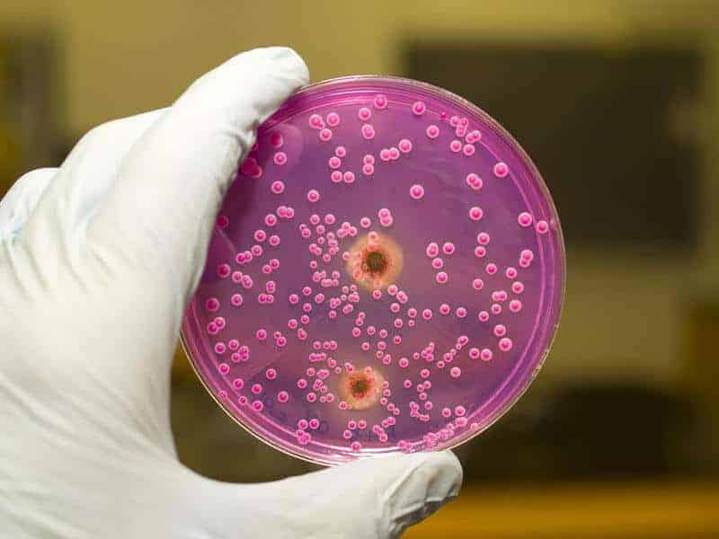 scientist examining a yeast culture tray