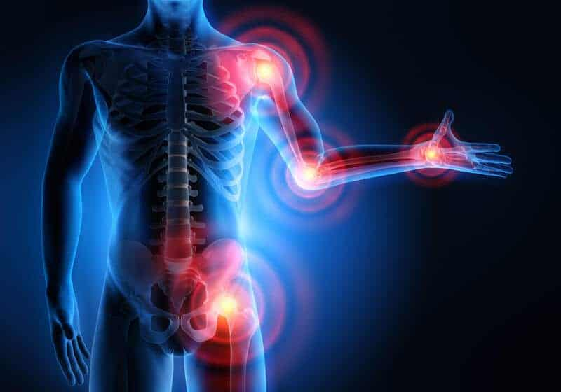 person with arthritis and joint pain
