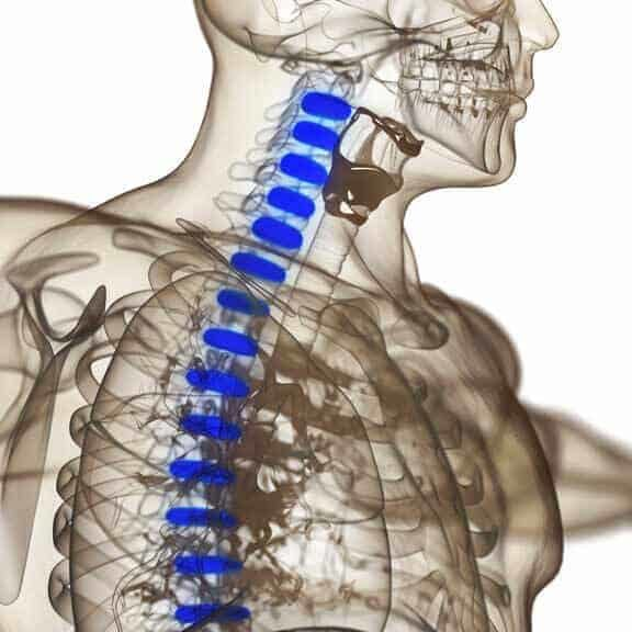 incorrect spinal alignment
